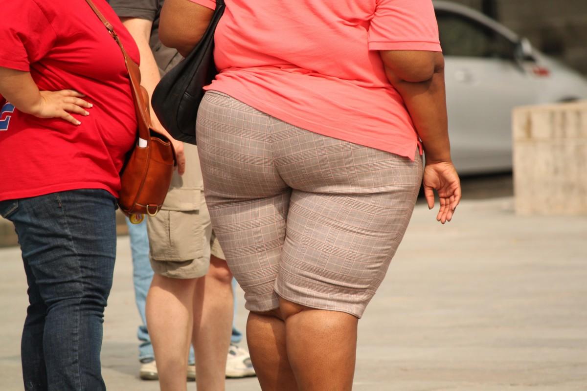 Ír tudósok felfedezték, miért lehetnek rákosok az elhízott emberek