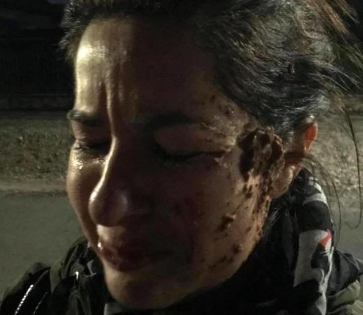 Trebbi Daniela a támadás után.