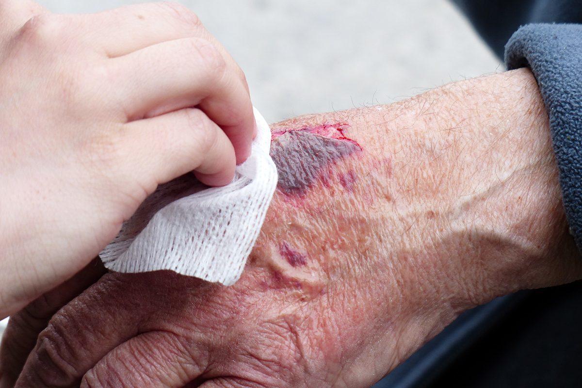 Kötszert kell vinniük a betegeknek a mezőkövesdi ügyeletre