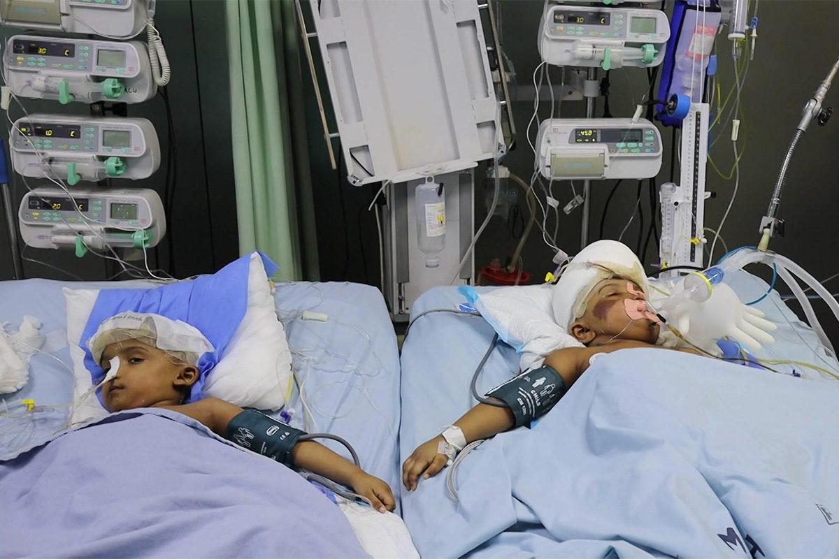 Életveszélyben a magyar orvosok által szétválasztott bangladesi ikerpár egyik tagja